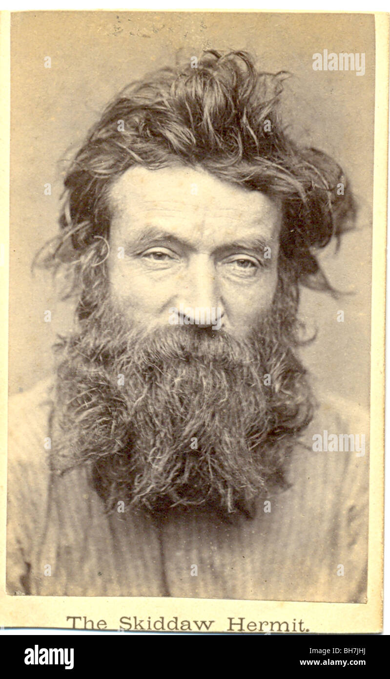 Carte De Visite Photograph Of The Skiddaw Hermit
