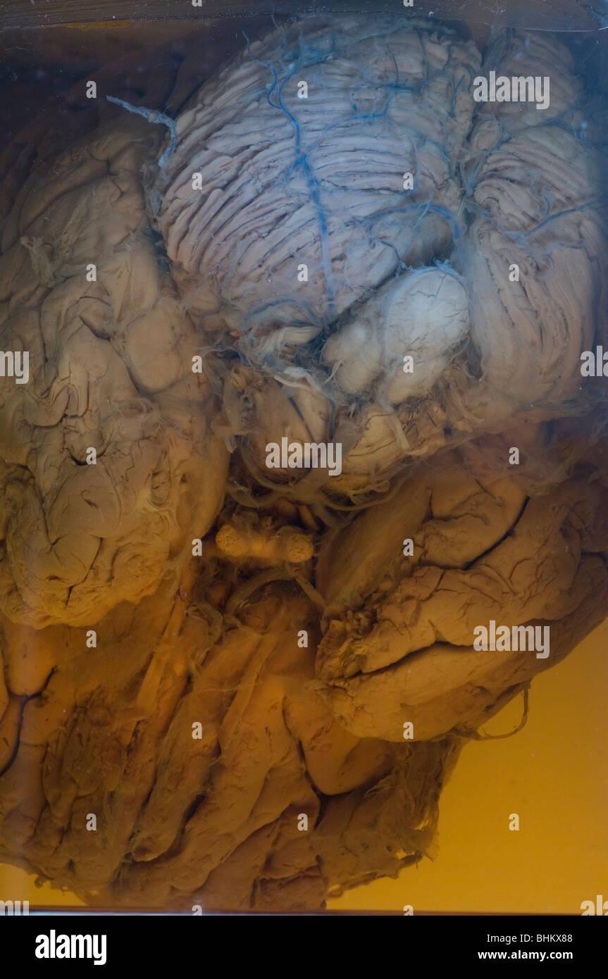 Human brain embalmed in a glass jar - Stock Image