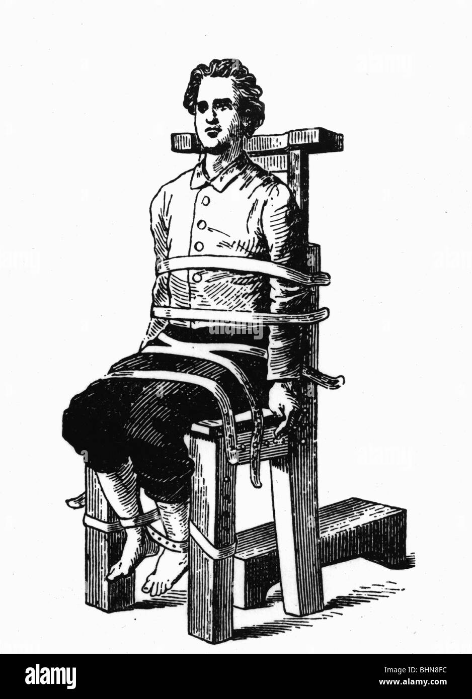 medicine, narcosis, patient strapped on operation chair, 1873, Additional-Rights-Clearances-NA - Stock Image