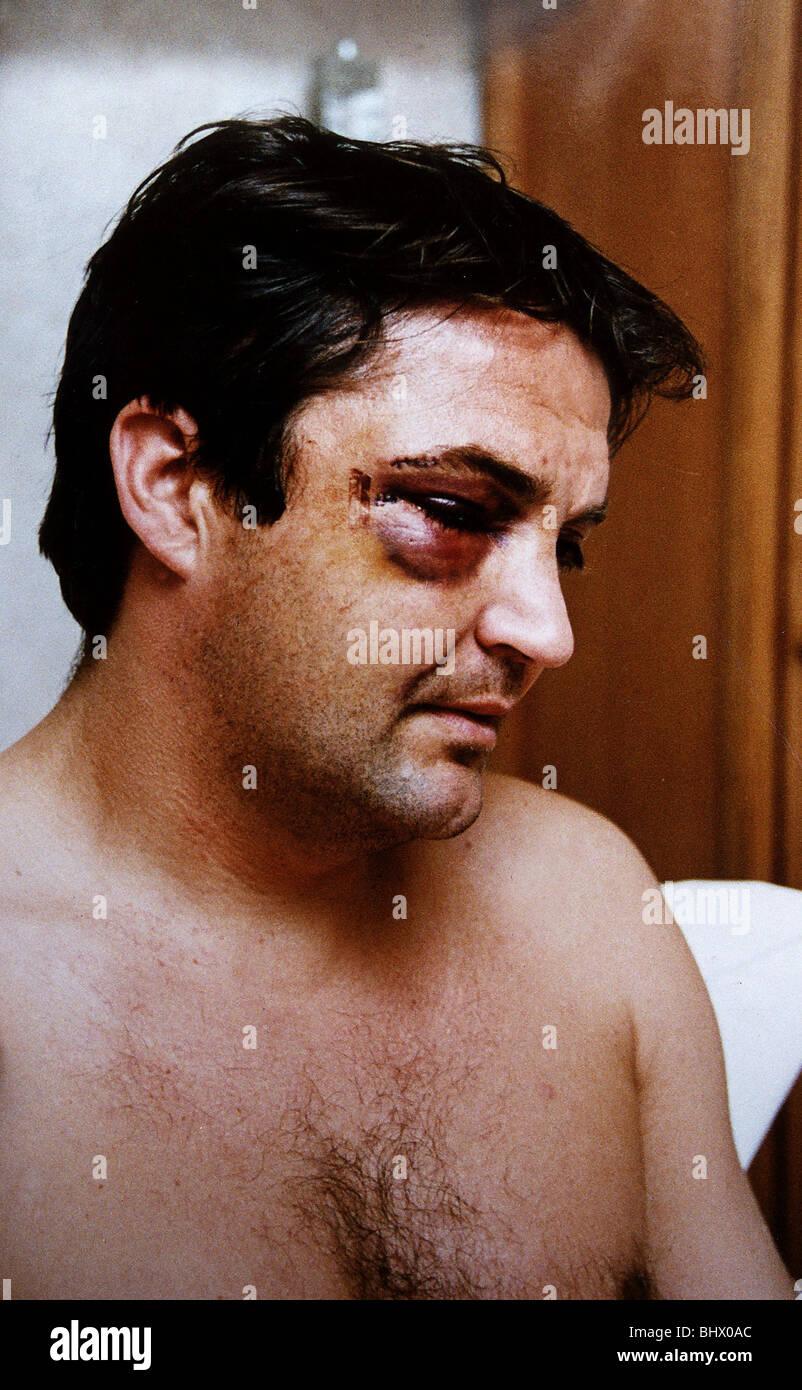 Gary Mabbutt Football shows off bruising on face after having jaw broken during football match for Tottenham Hotspur - Stock Image