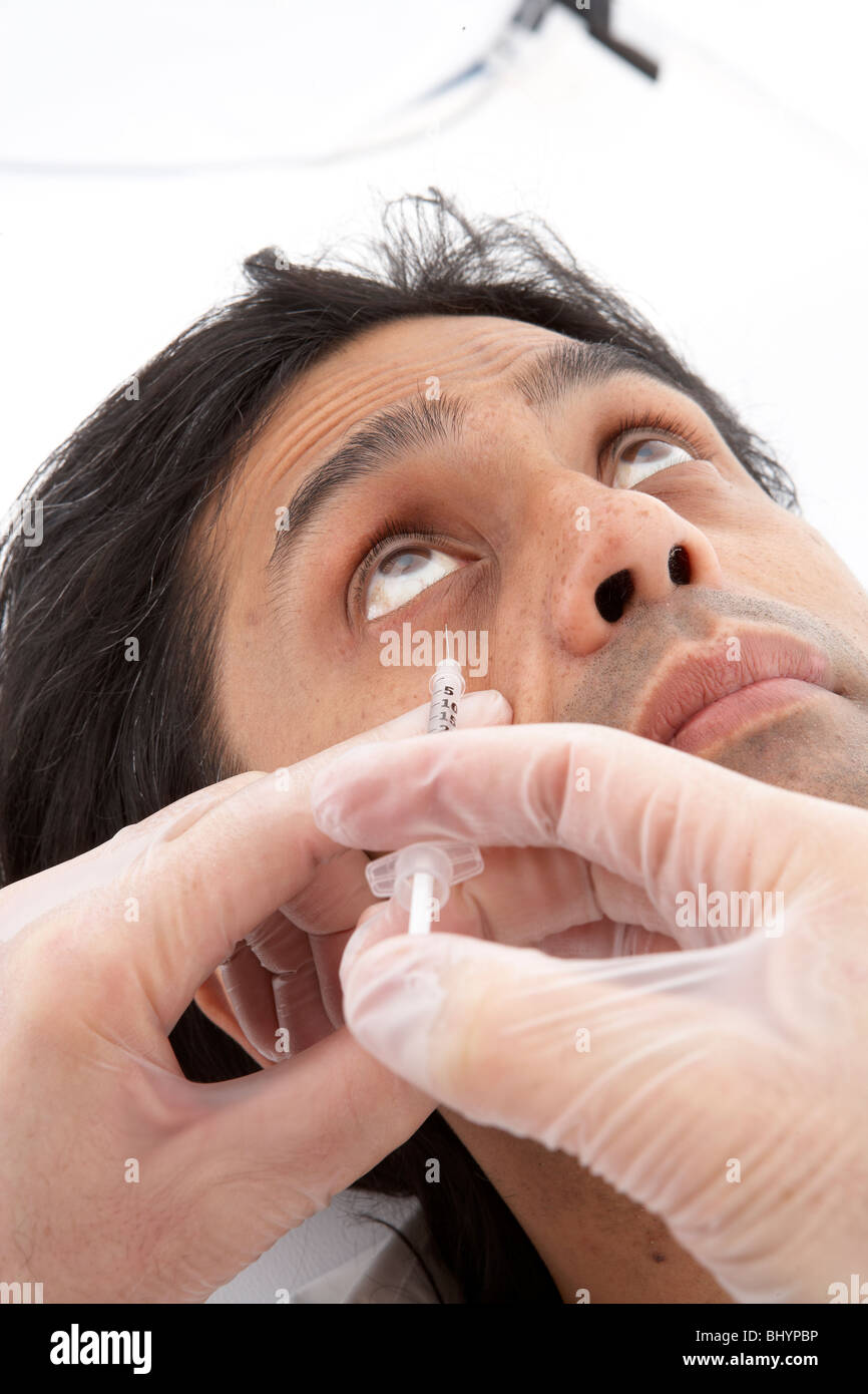 Lower eyelid MP line Botox injection site - Stock Image