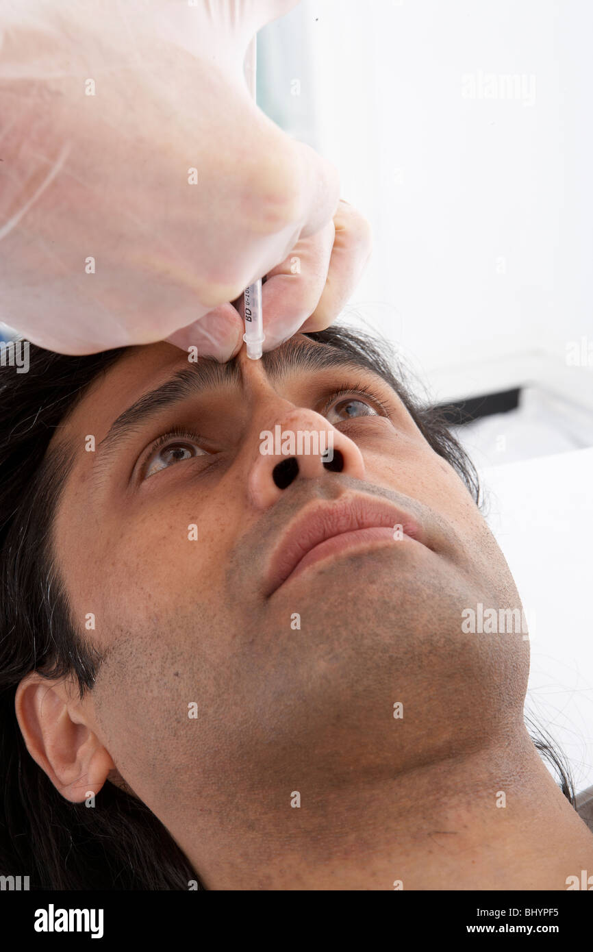 M.Brsocerus 2 Botox injection site - Stock Image