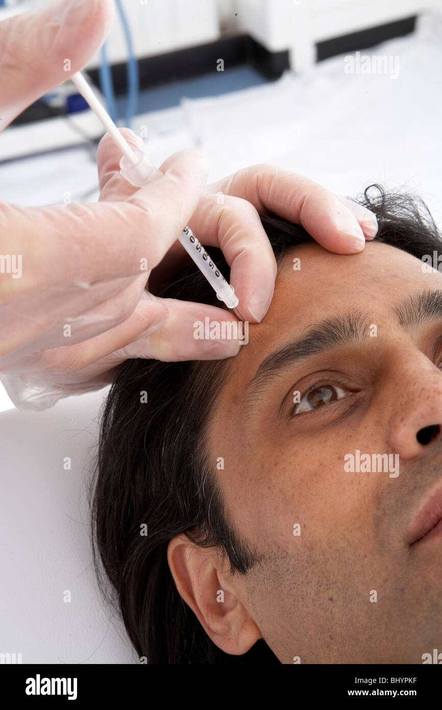 M.Frontalis Botox injection site - Stock Image