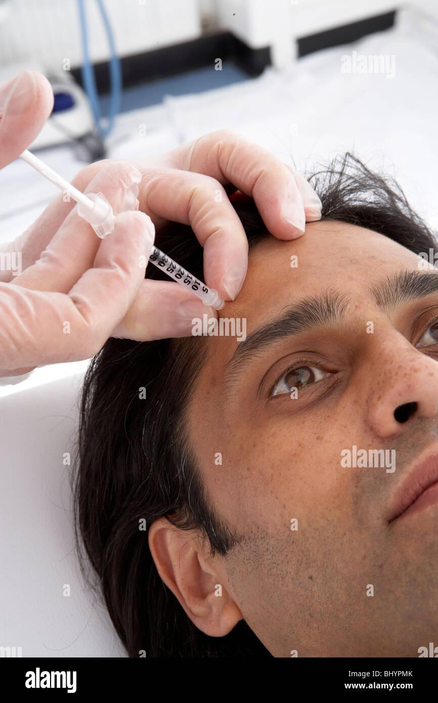 M.Frontalis (EPIC li Botox injection site - Stock Image
