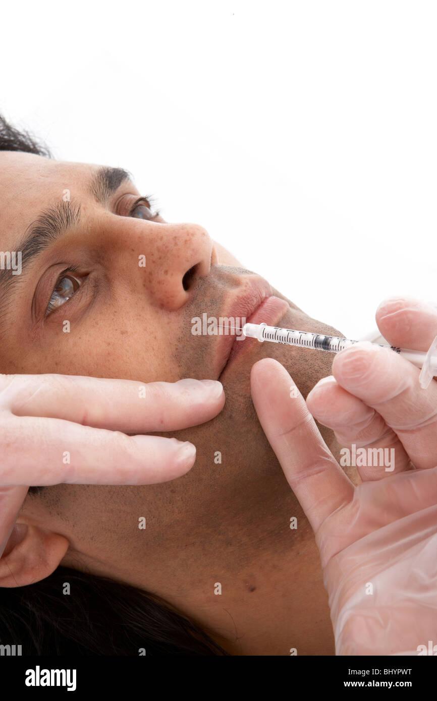 M.Orbicoris mid. 1 Botox injection site - Stock Image