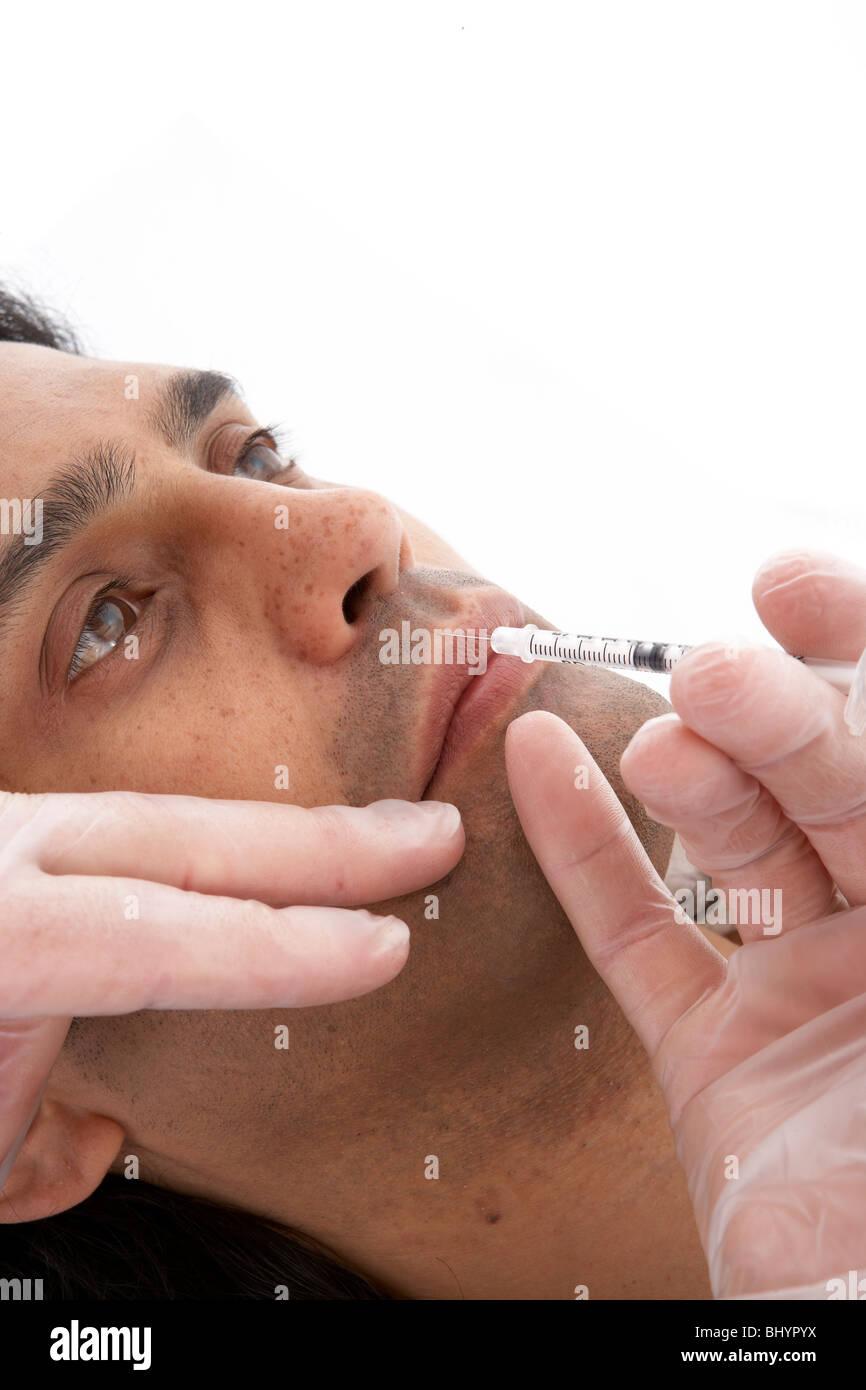 M.Orbicoris phil. 1 Botox injection site - Stock Image
