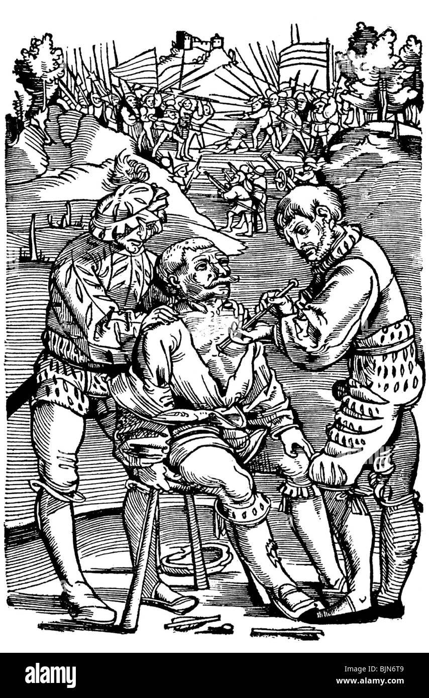 medicine, treatment, surgeon removing an arrow, woodcut, from 'Feldtbuch der Wundartzney', by Hans von Gersdorff, - Stock Image