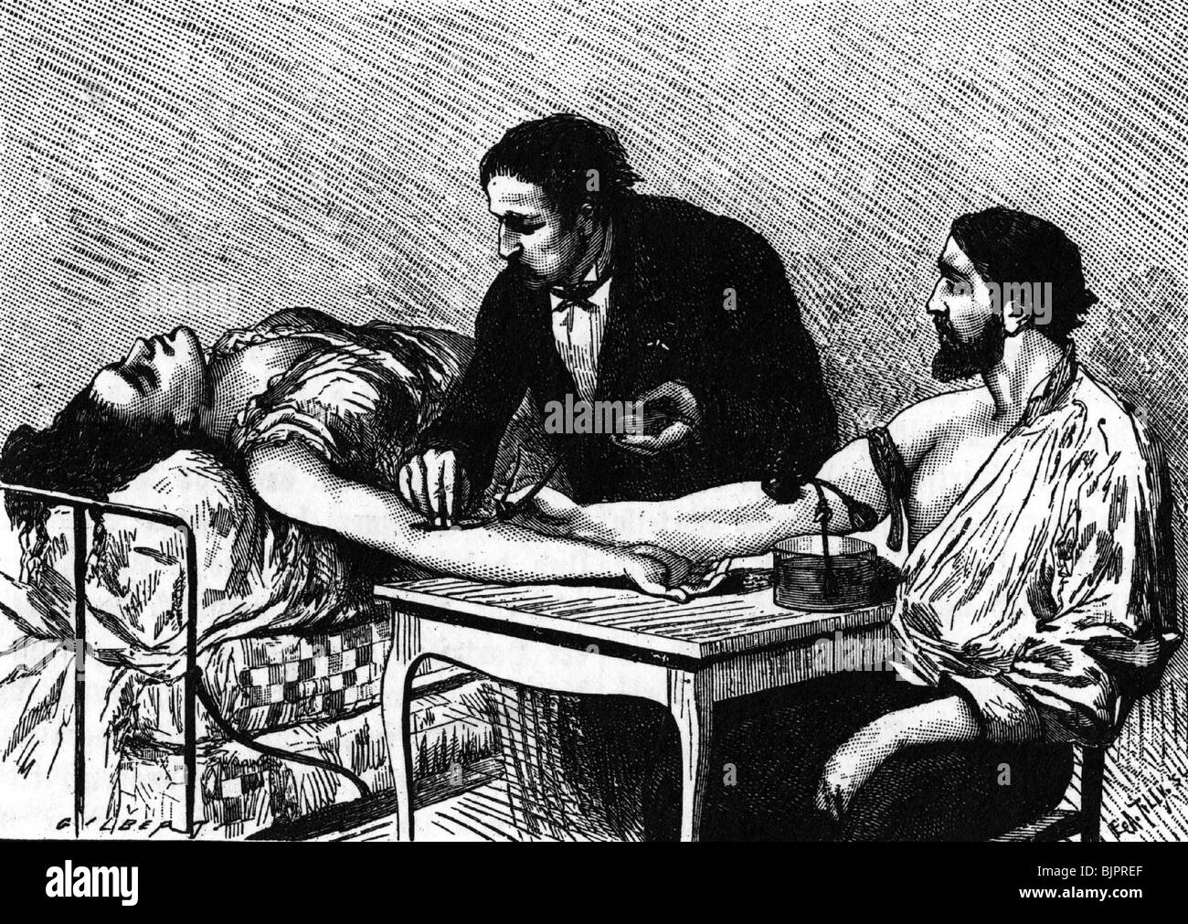 medicine, treatment, blood transfusion, drawing, 1885, Additional-Rights-Clearances-NA - Stock Image