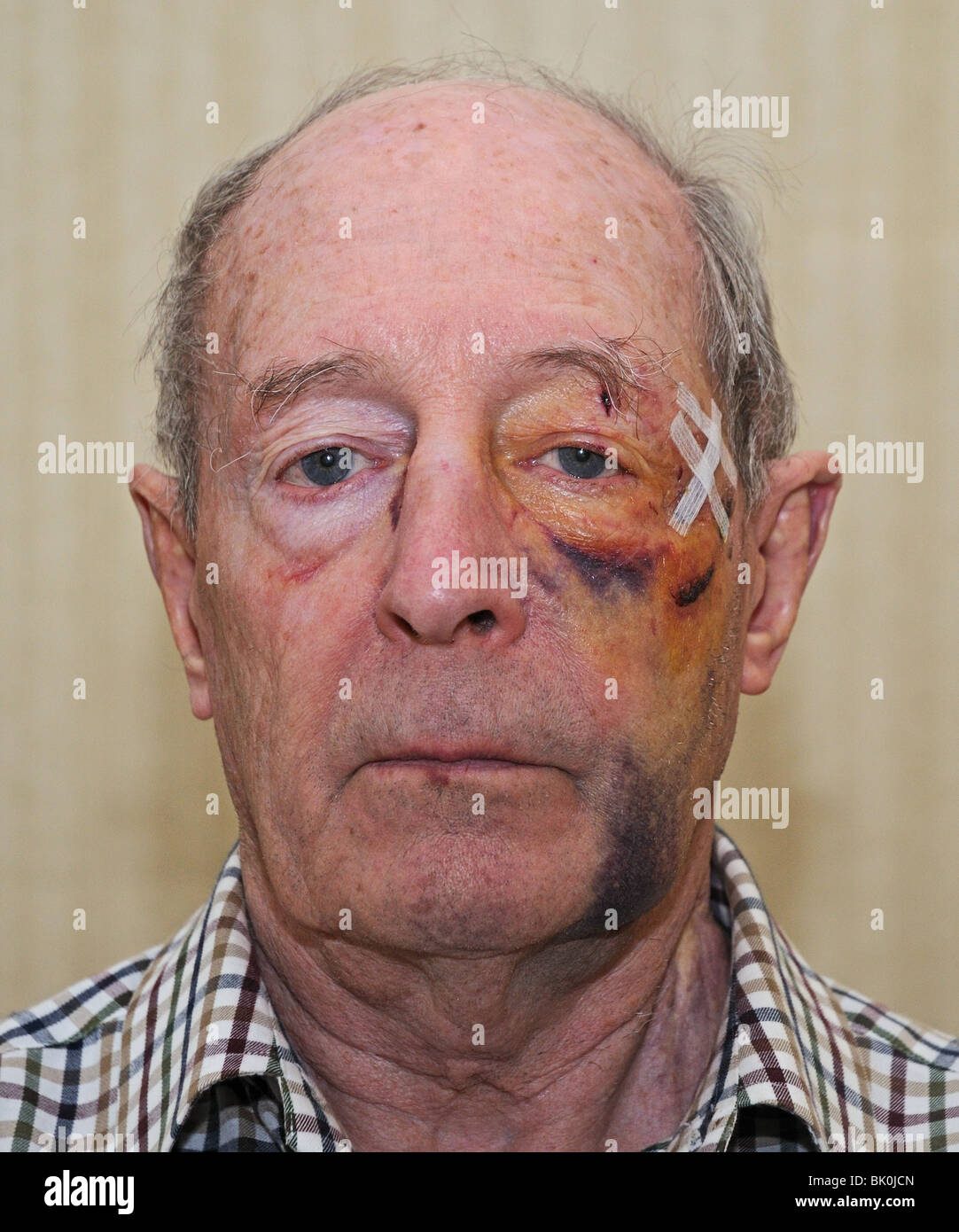 Facial wounds bruises and injuries on elderley 76 year old white man after being assaulted by teenagers in Oxfordshire - Stock Image