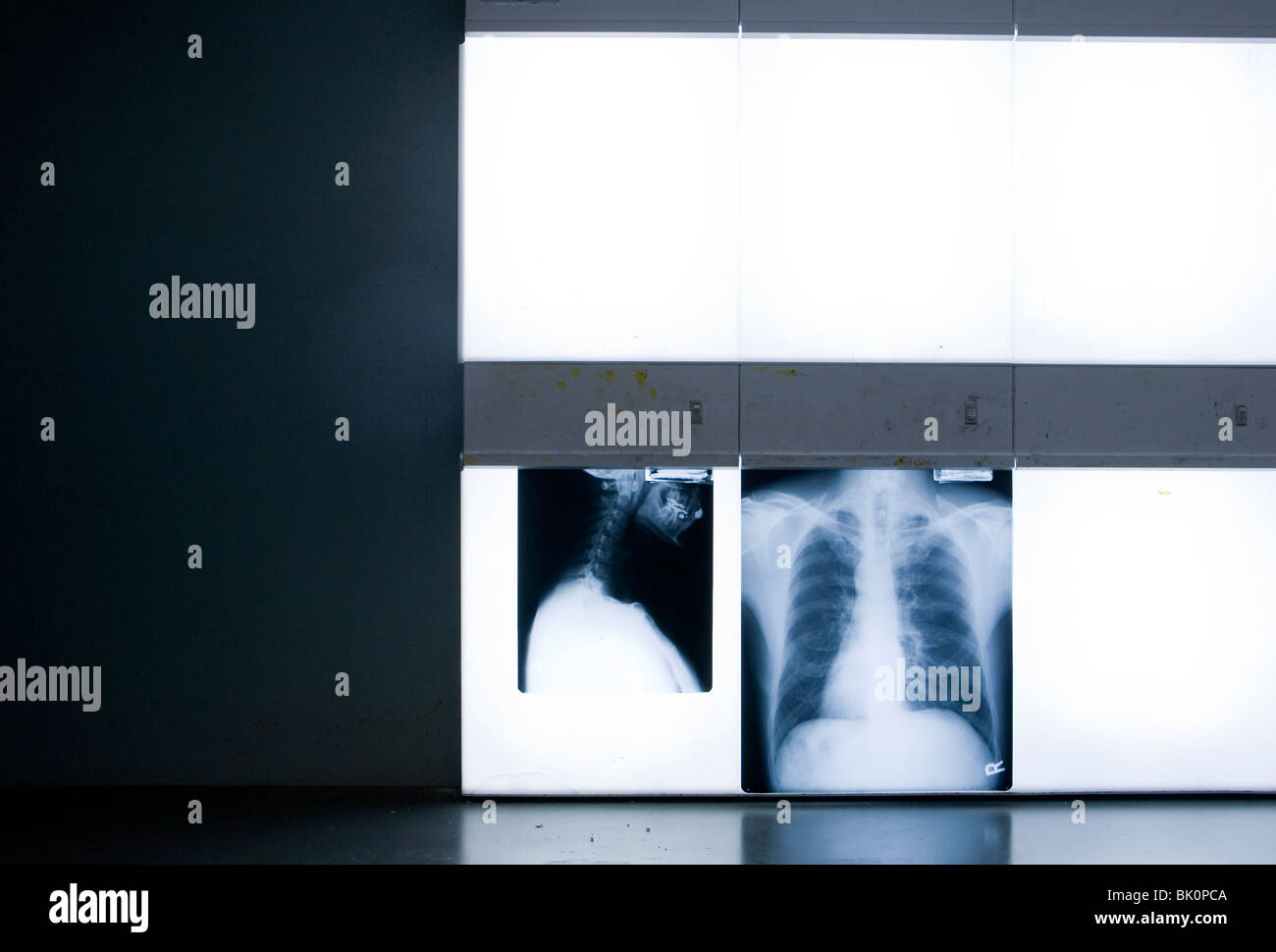 X-rays in a doctors office.  - Stock Image