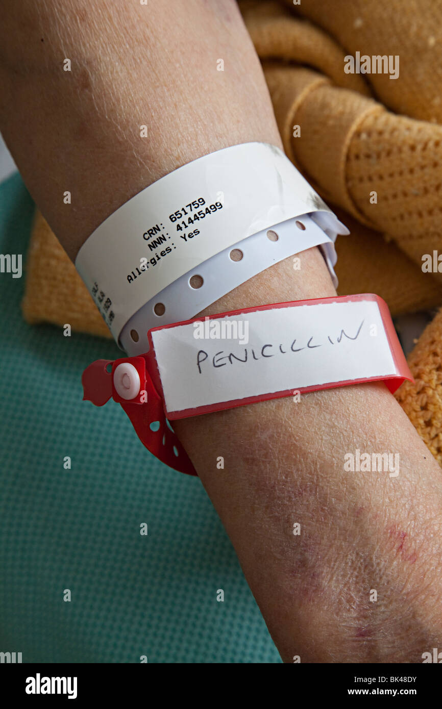Patient in hospital with allergy warning information on wrist bands Nevill Hall Hospital Abergavenny Wales UK - Stock Image