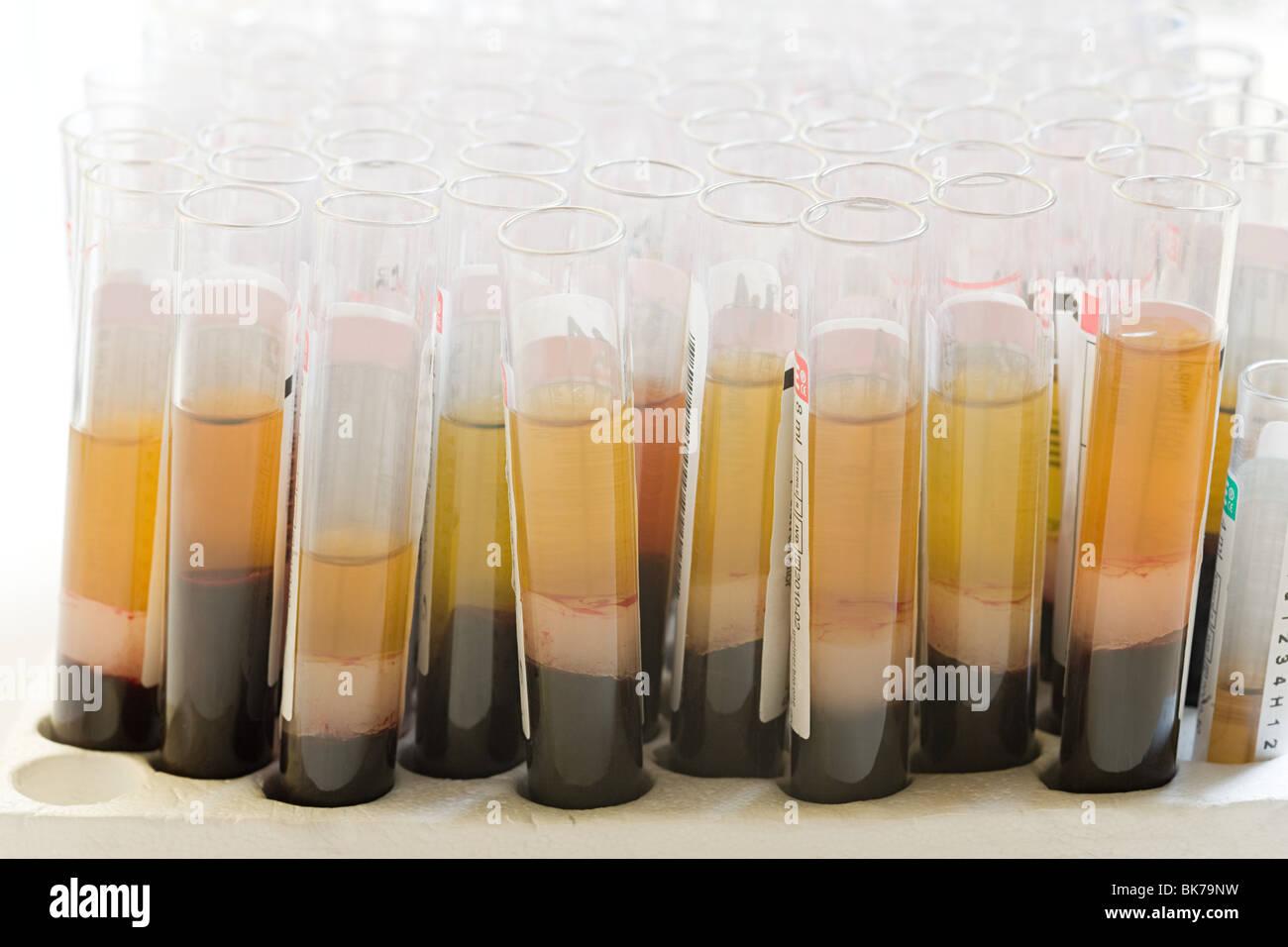 Liquid in test tubes - Stock Image