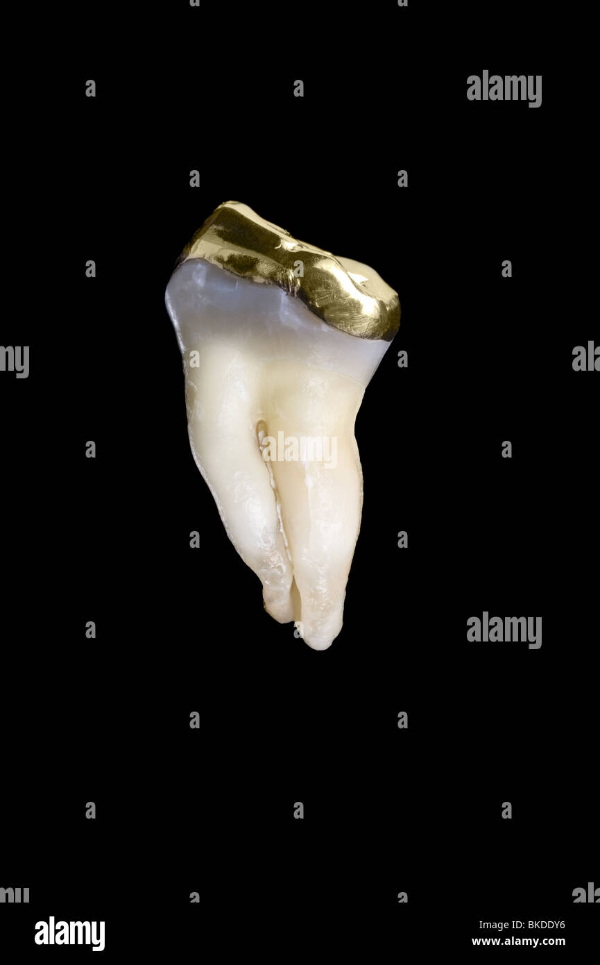 A 45 year old human molar tooth with a gold crown isolated on black. - Stock Image