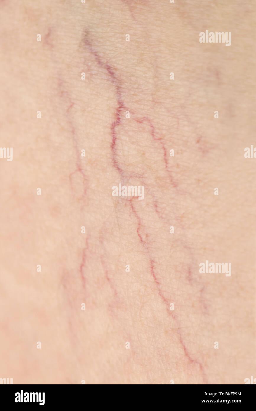 Close up of thread veins on Caucasian female leg - Stock Image