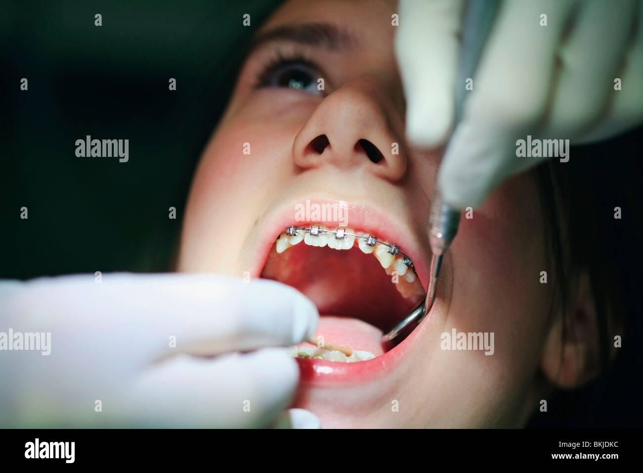 A Teenager With Braces Having Their Mouth Examined By The Dentist Stock Photo