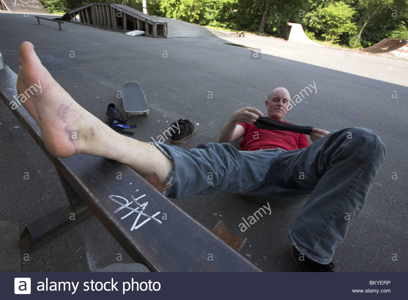 Skateboarder Fabian Nilsson with an injured left foot.  - Stock Image