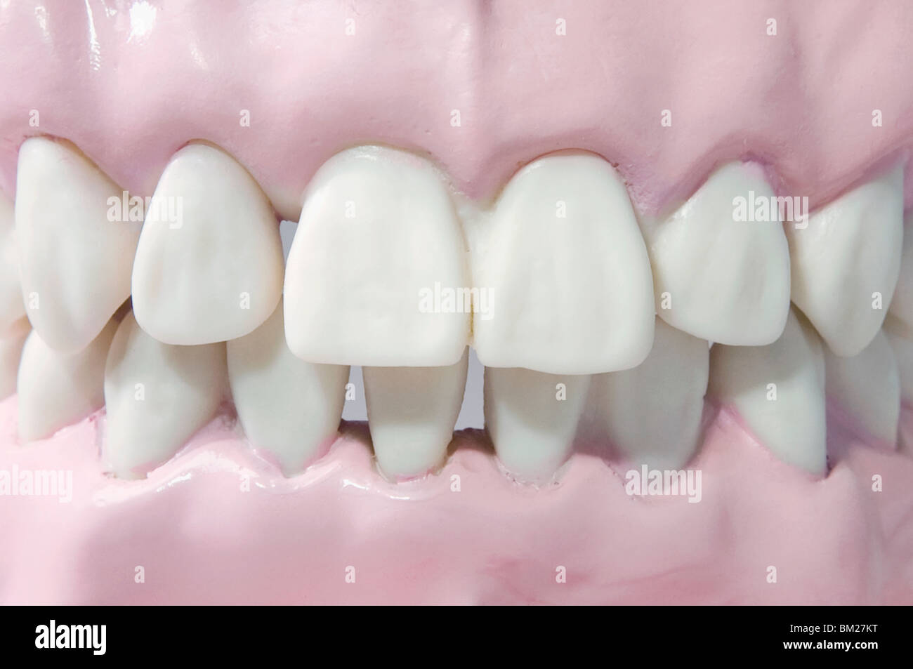 Full Set Human Teeth Stock Photos Full Set Human Teeth Stock