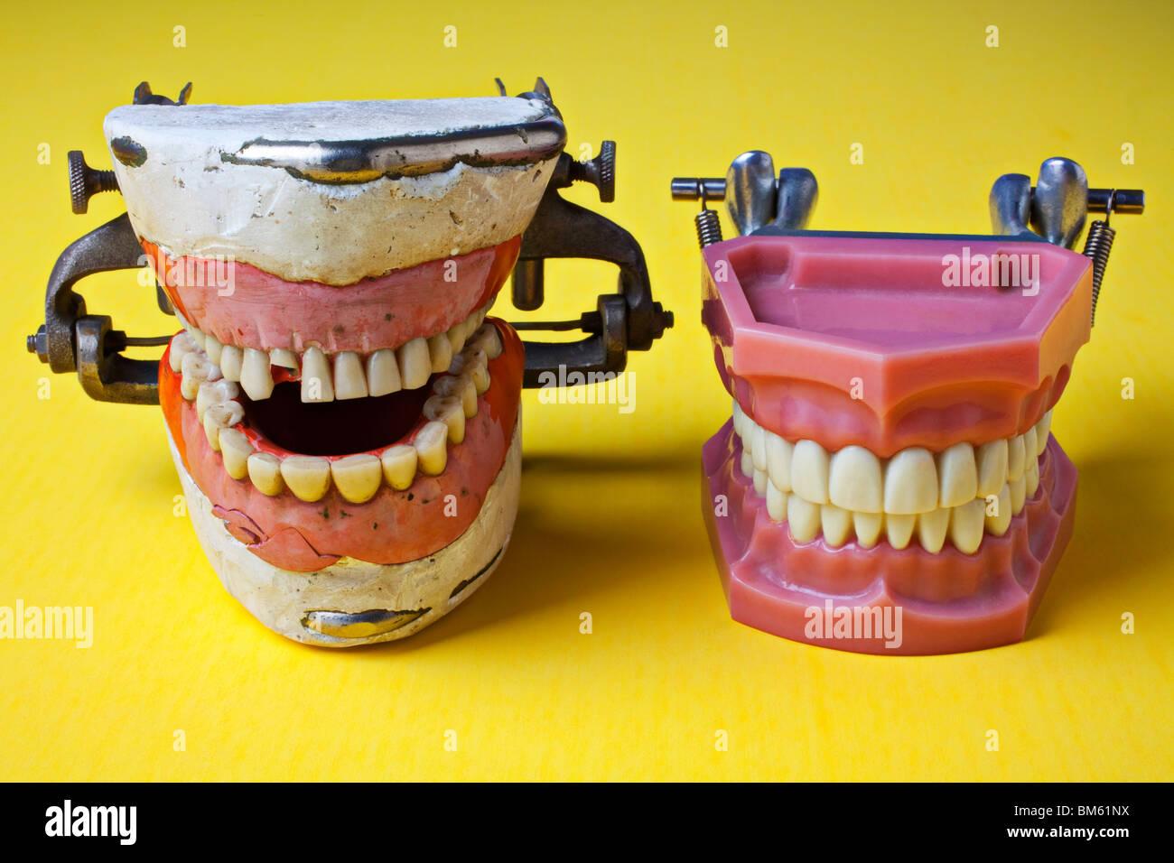 Dental models, bad teeth, good teeth Stock Photo