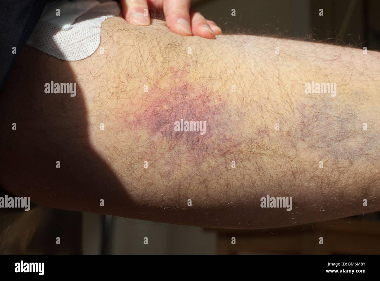 A Man With Badly Bruised Thigh After Surgery To Remove Varicose Vein