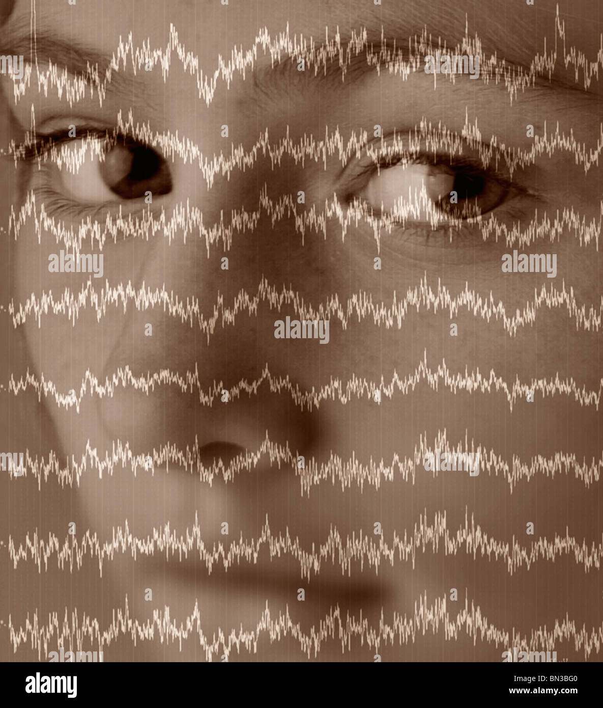 An electroencephalogram of normal human brain waves superimposed over a photograph of a girl - Stock Image