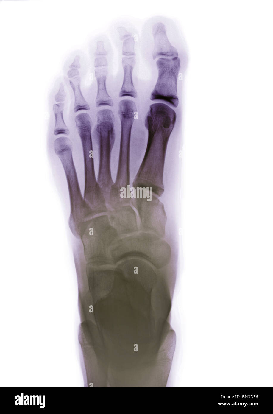 colorized x-ray of a human foot - Stock Image