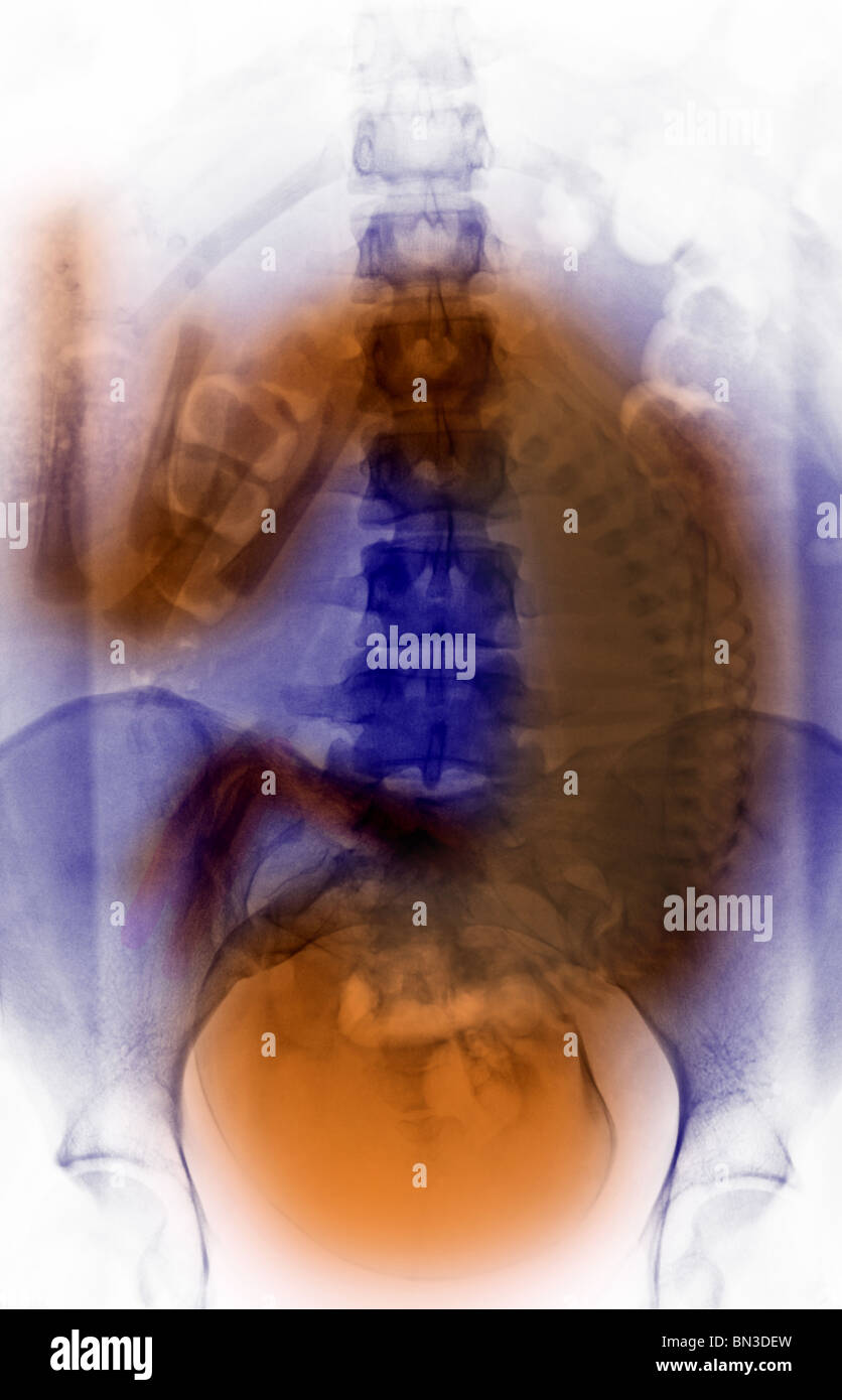 Abdominal x-ray of a 19 year old woman with a full-term fetus - Stock Image