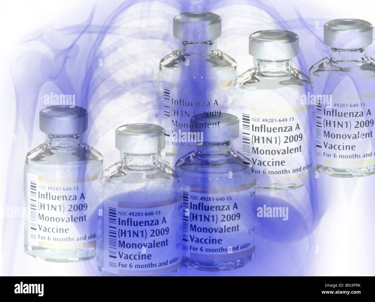 vials of the 2009 H1N1 swine flu vaccine superimposed on a chest x-ray of a patient with swine flu pneumonia Stock Photo