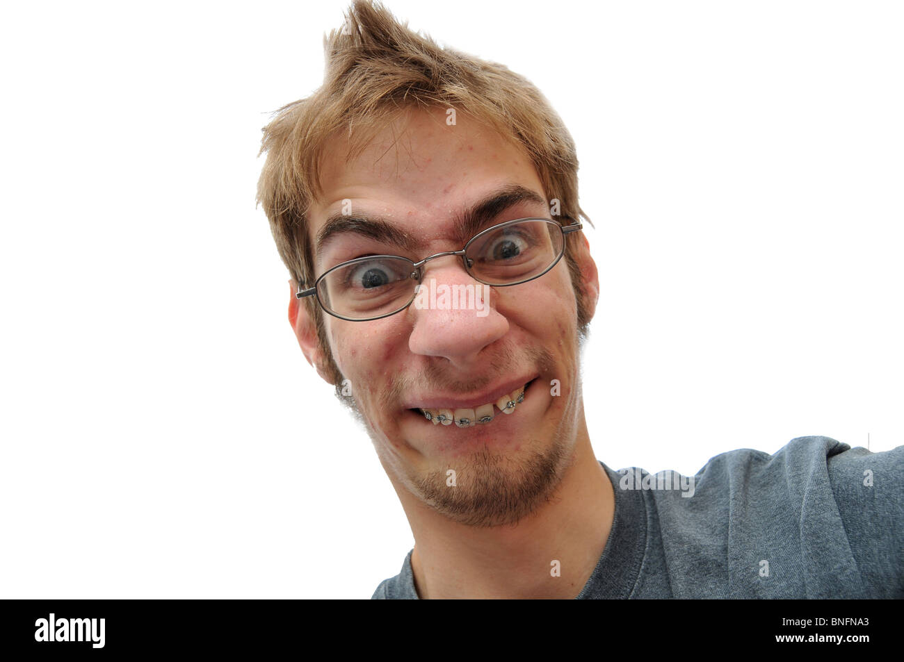 Man showing his braces face close up - Stock Image