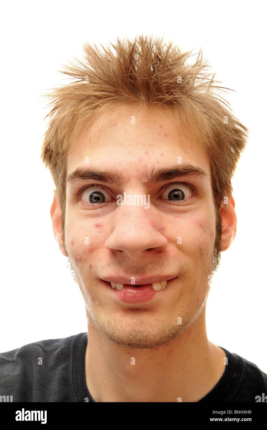Ugly smile Stock Photo: 30512188 - Alamy
