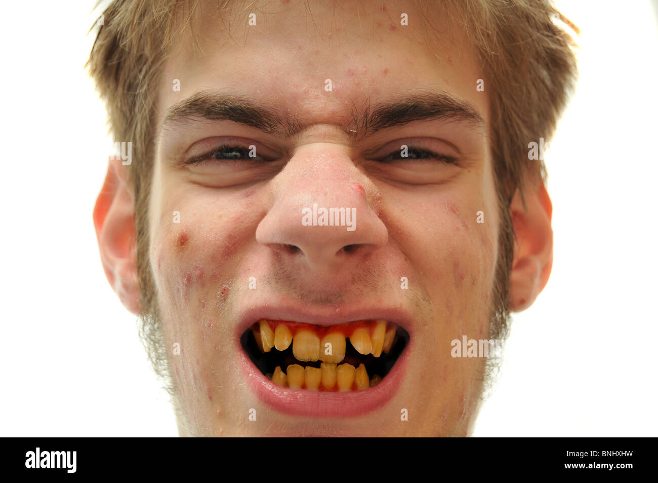 Teeth men with bad Would you