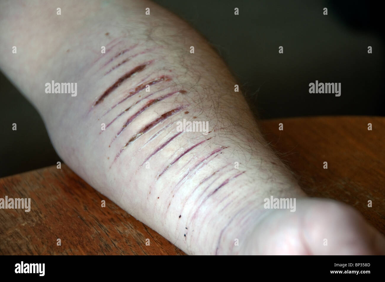 Extremely depressed young man self harming and suicidal. Stock Photo