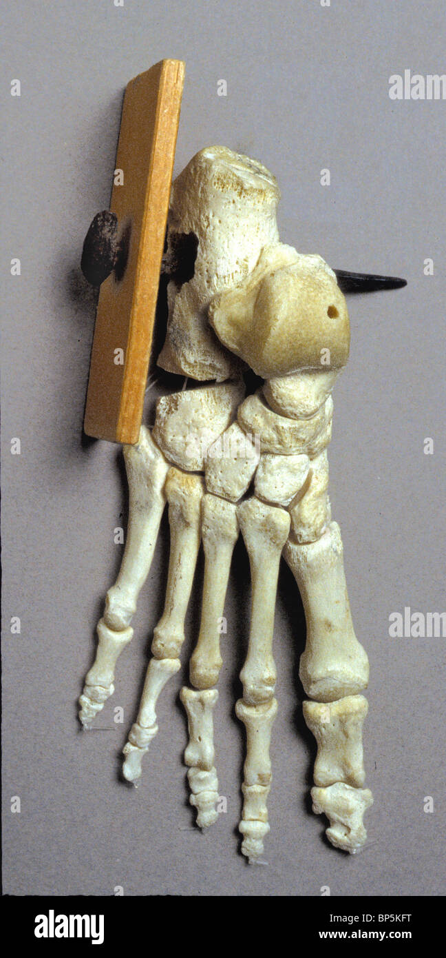 MODEL OF A SKELETON FOOT WITH A NAIL PIERCING THE HEELBONE ...