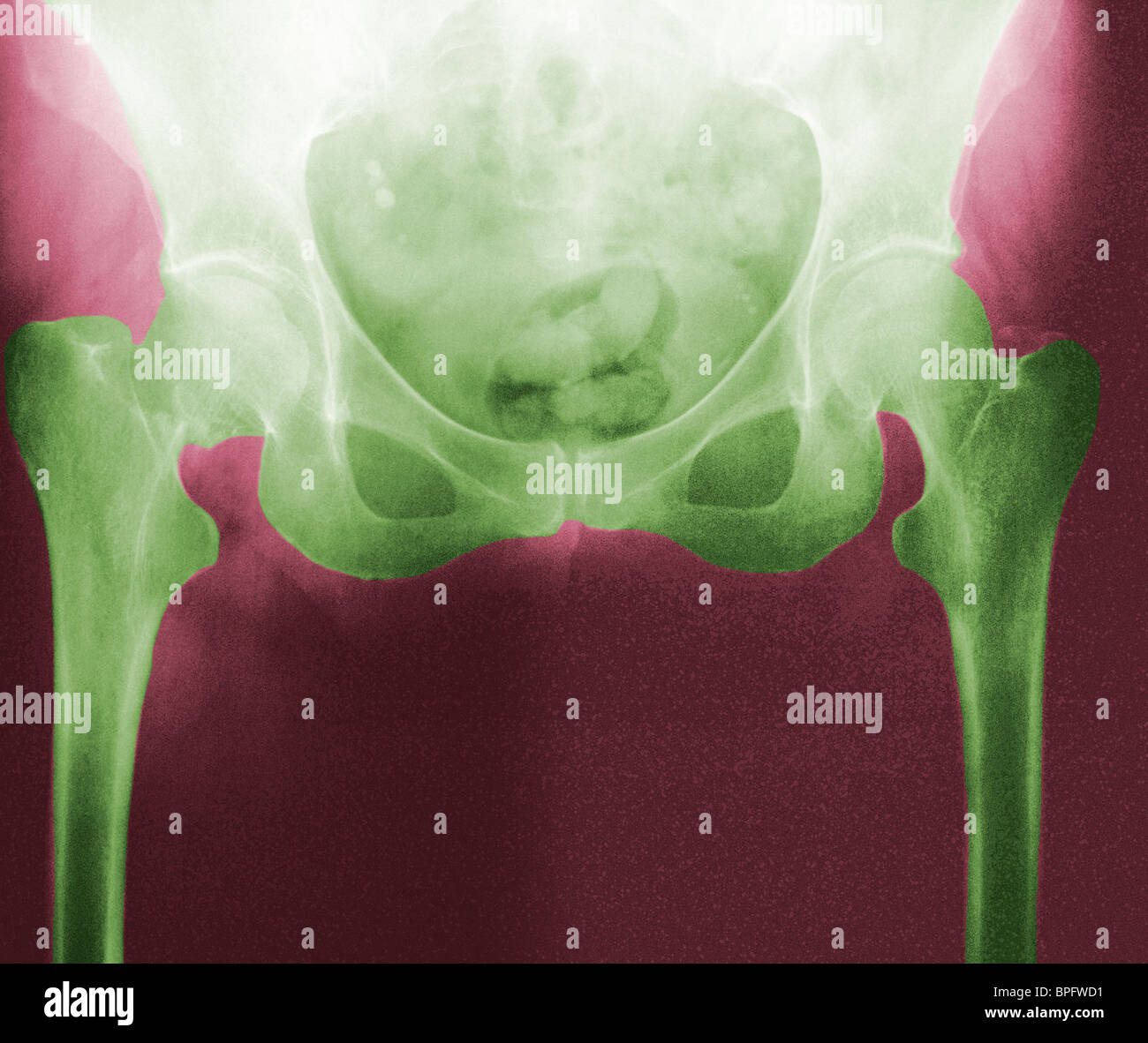A coloured radiograph of the pelvis and the hips - Stock Image