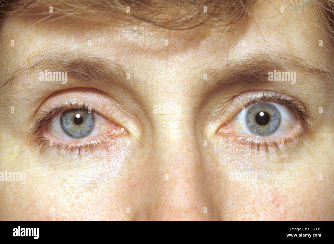Horners Syndrome Is Caused By Injury To The Sympathetic Nerves Of