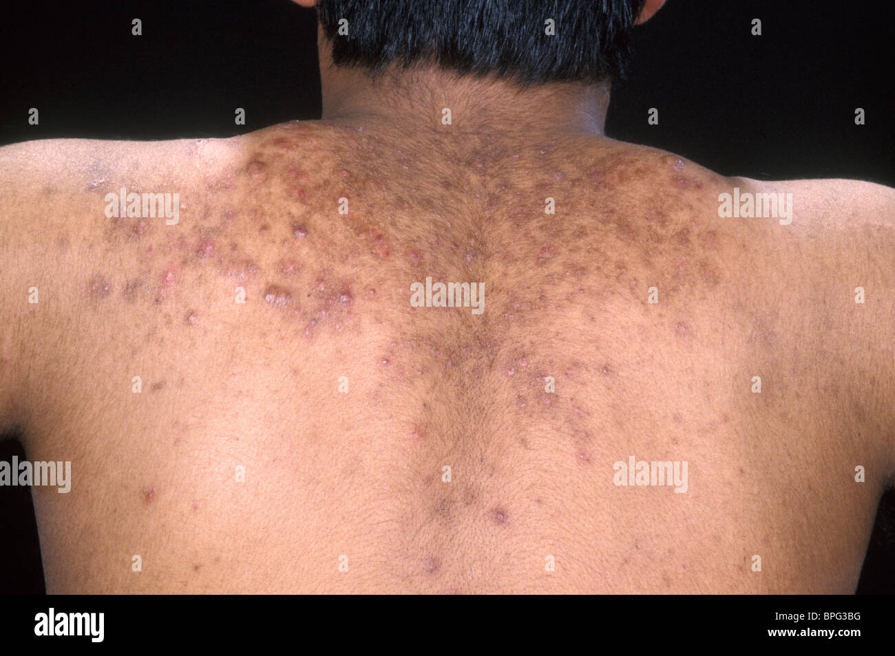 acne is a general name given to a skin disorder in which