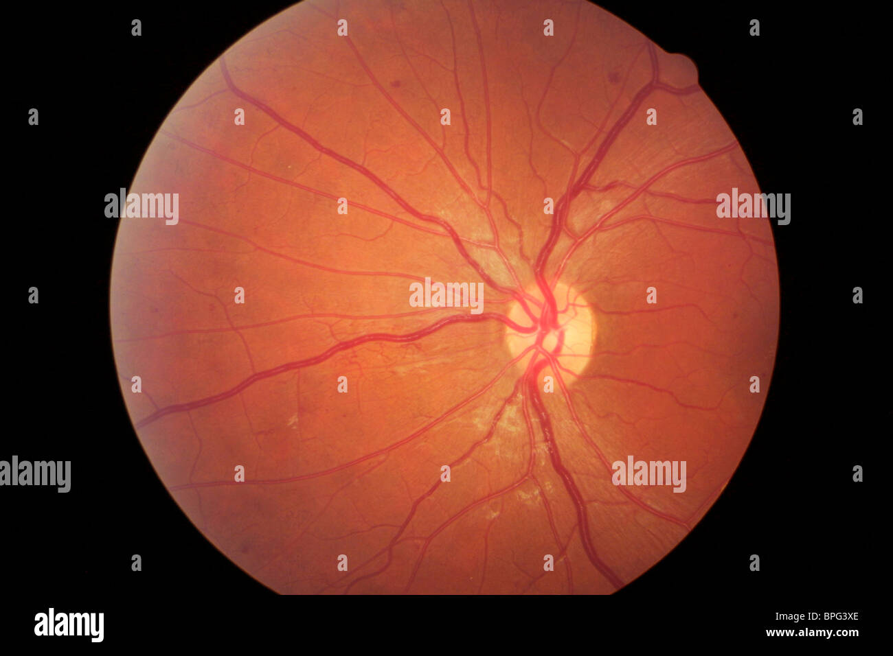 Proliferative Diabetic Retinopathy can be seen in the eye with an ophthalmoscope as neovascularisation. - Stock Image