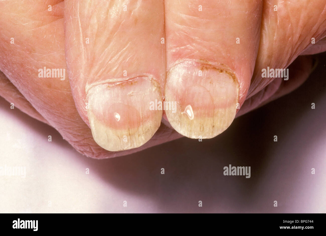 Koilonychia both thumbs Stock Photo: 31089636 - Alamy