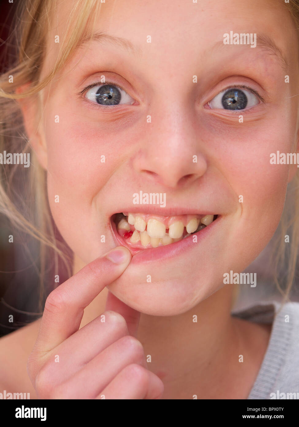 Girl showing her missing molar 10 years old exchanging teeth fun funny Her name is Lara - Stock Image
