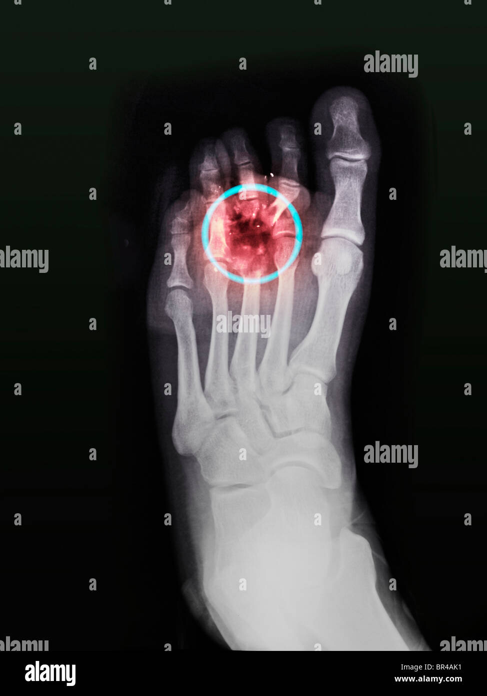 Foot x-ray of a 34 year old man who shot himself accidentally in the foot while cleaning his gun - Stock Image