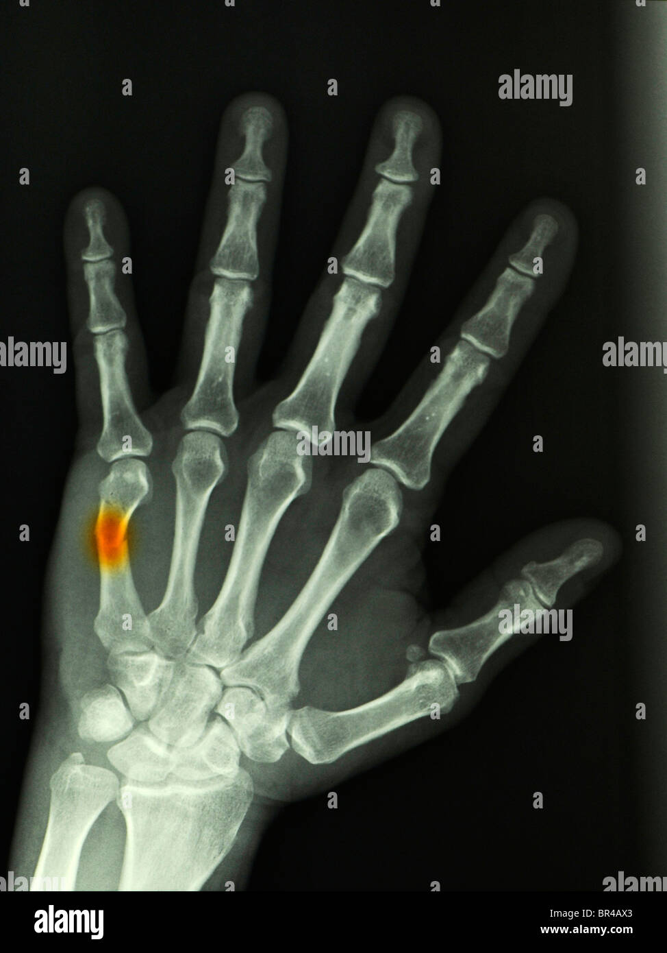 Bone Fracture Hand Stock Photos & Bone Fracture Hand Stock Images ...