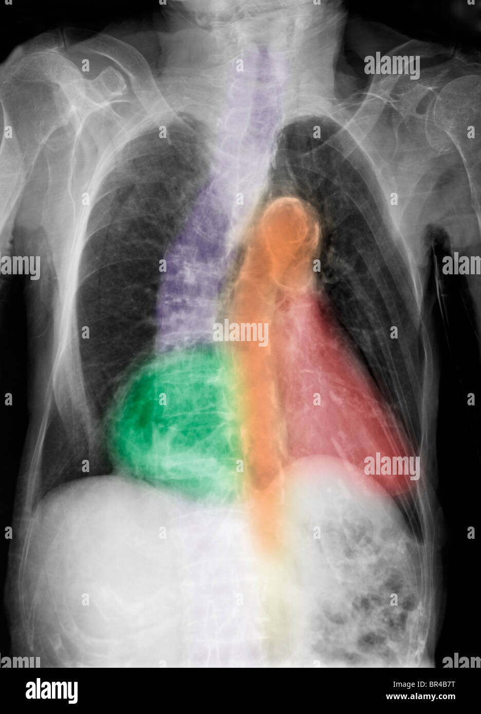 chest x-ray of a 96 year old woman with calcifications of the aorta, scoliosis and degenerative changes - Stock Image