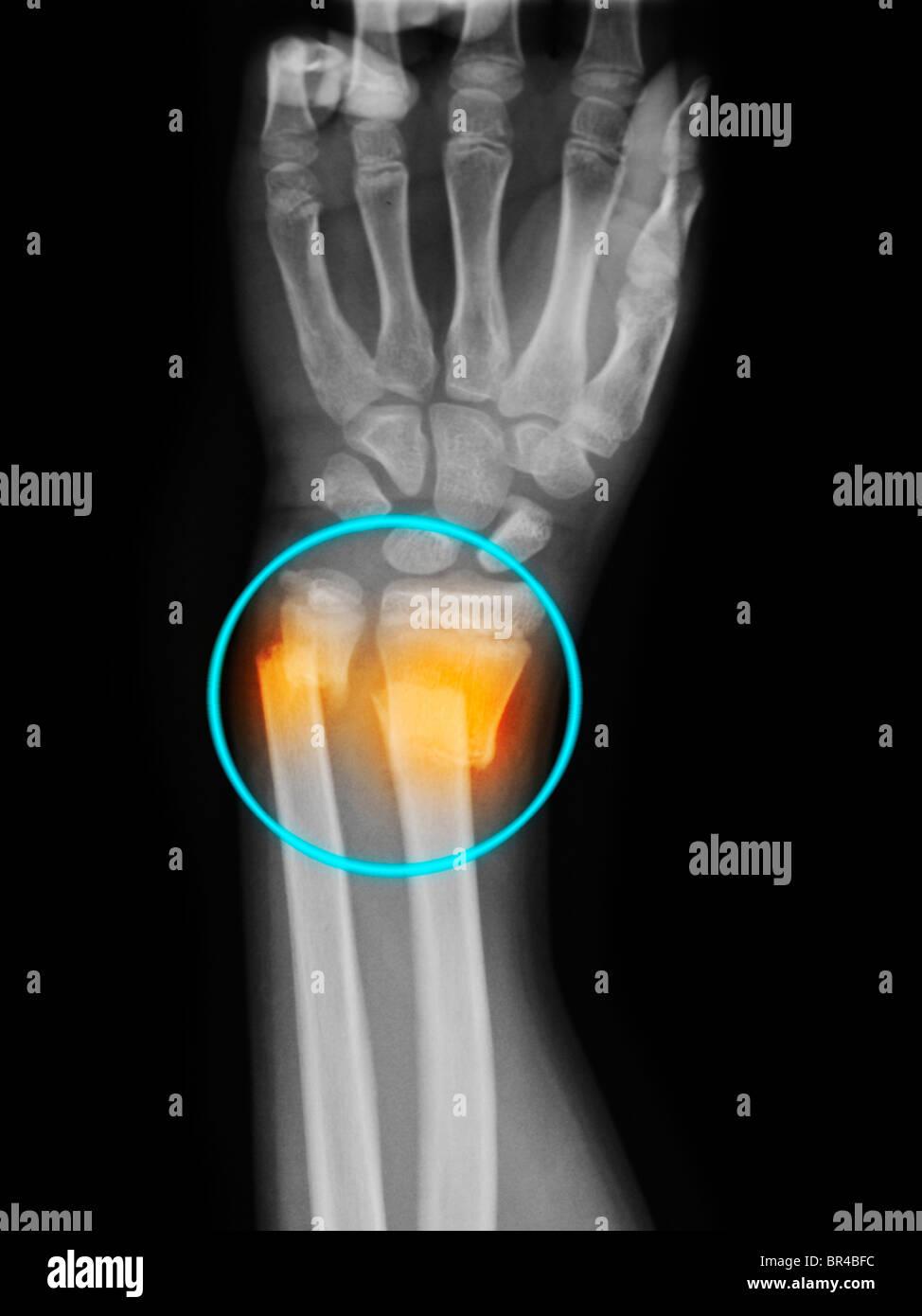 Broken Ulna Stock Photos & Broken Ulna Stock Images - Alamy