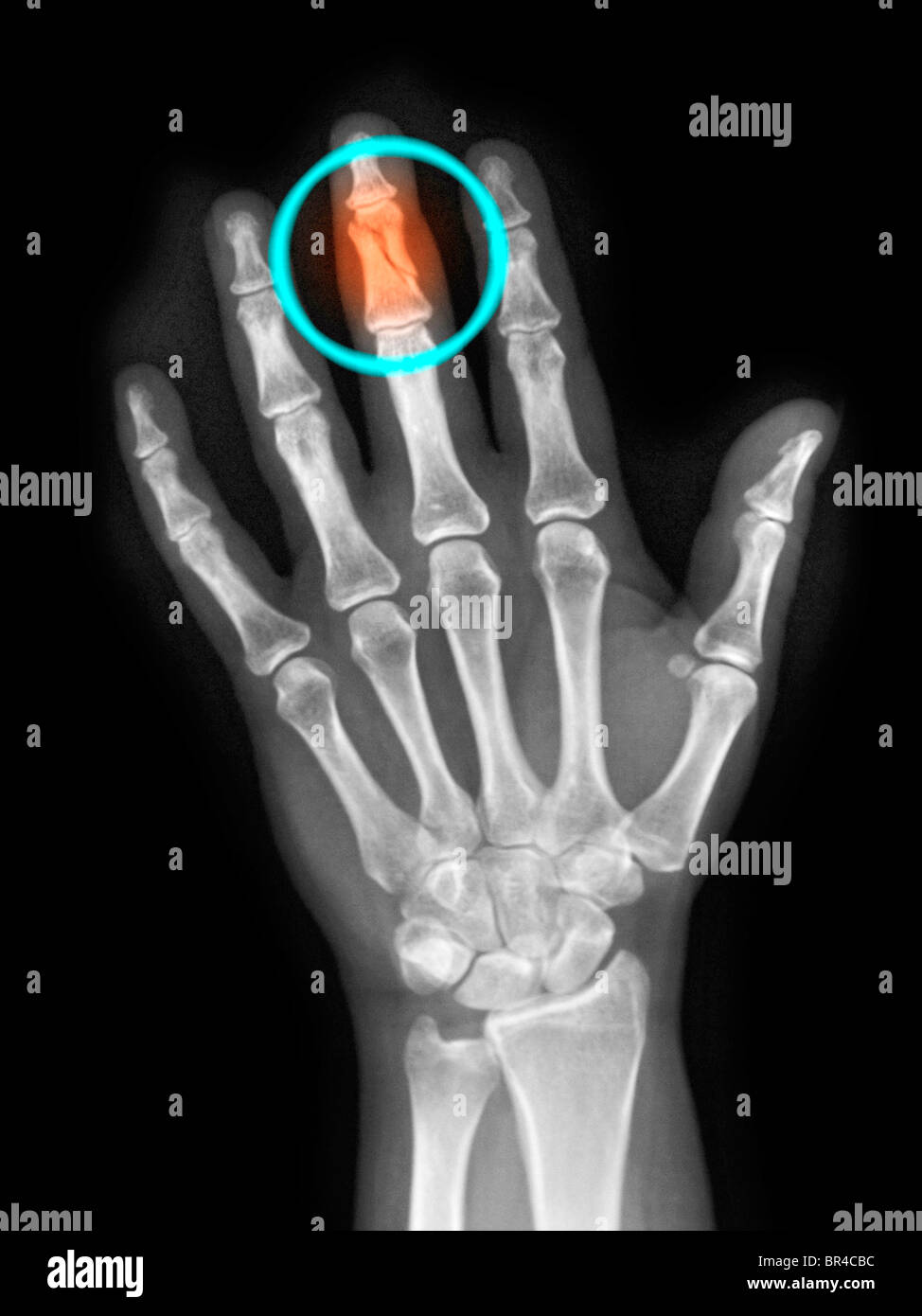 x-ray of the hand of a 40 year old woman showing a fractured middle finger - Stock Image