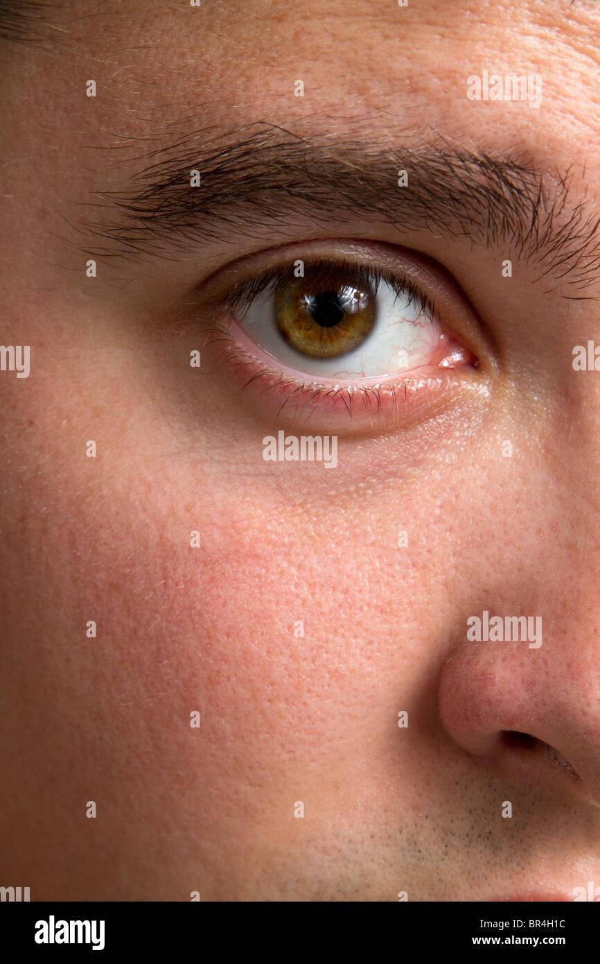 Close up of man's bloodshot eye. - Stock Image