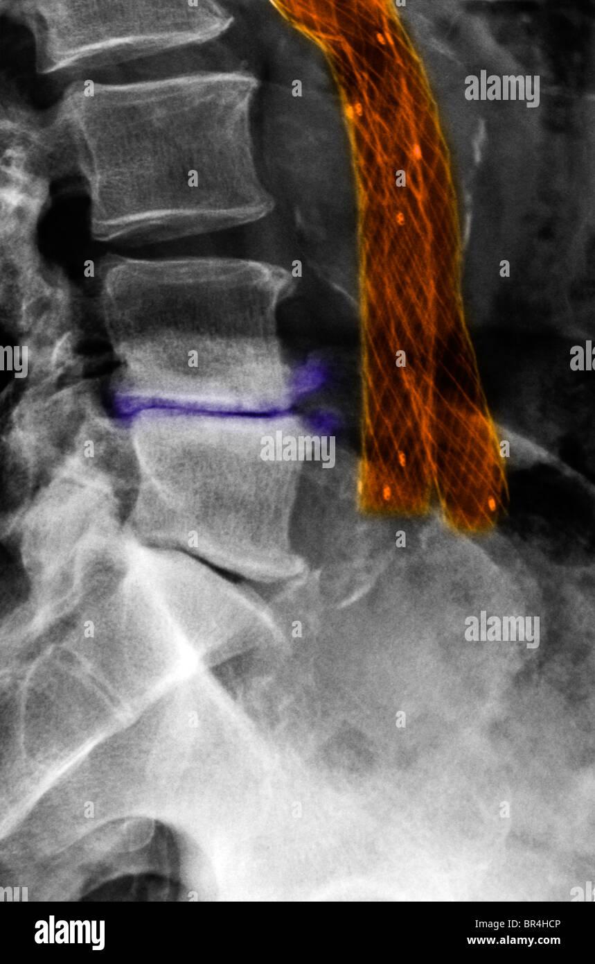 X Ray Showing A Wiremesh Aortoiliac Bypass Graft Stock Photo