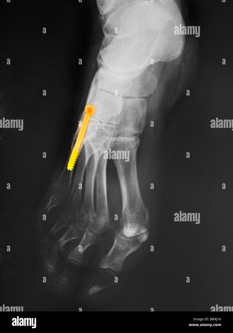 x-ray of the leg of a 43 year old woman who had  surgery on the 5th metatarsal where there is a screw into the bone - Stock Image