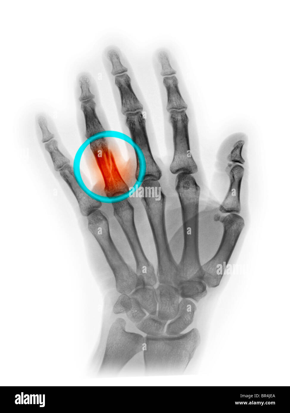 hand x-ray showing a fracture of the proximal phalanx of the ring finger - Stock Image