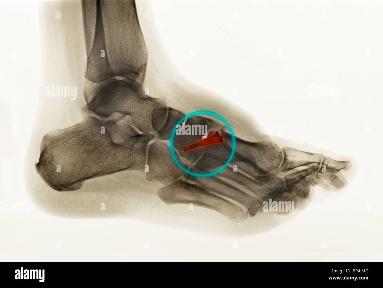 foot x-ray of a 30 year old man who had surgery of the first metatarsal with 2 screws fusing the metatarsal to the - Stock Image