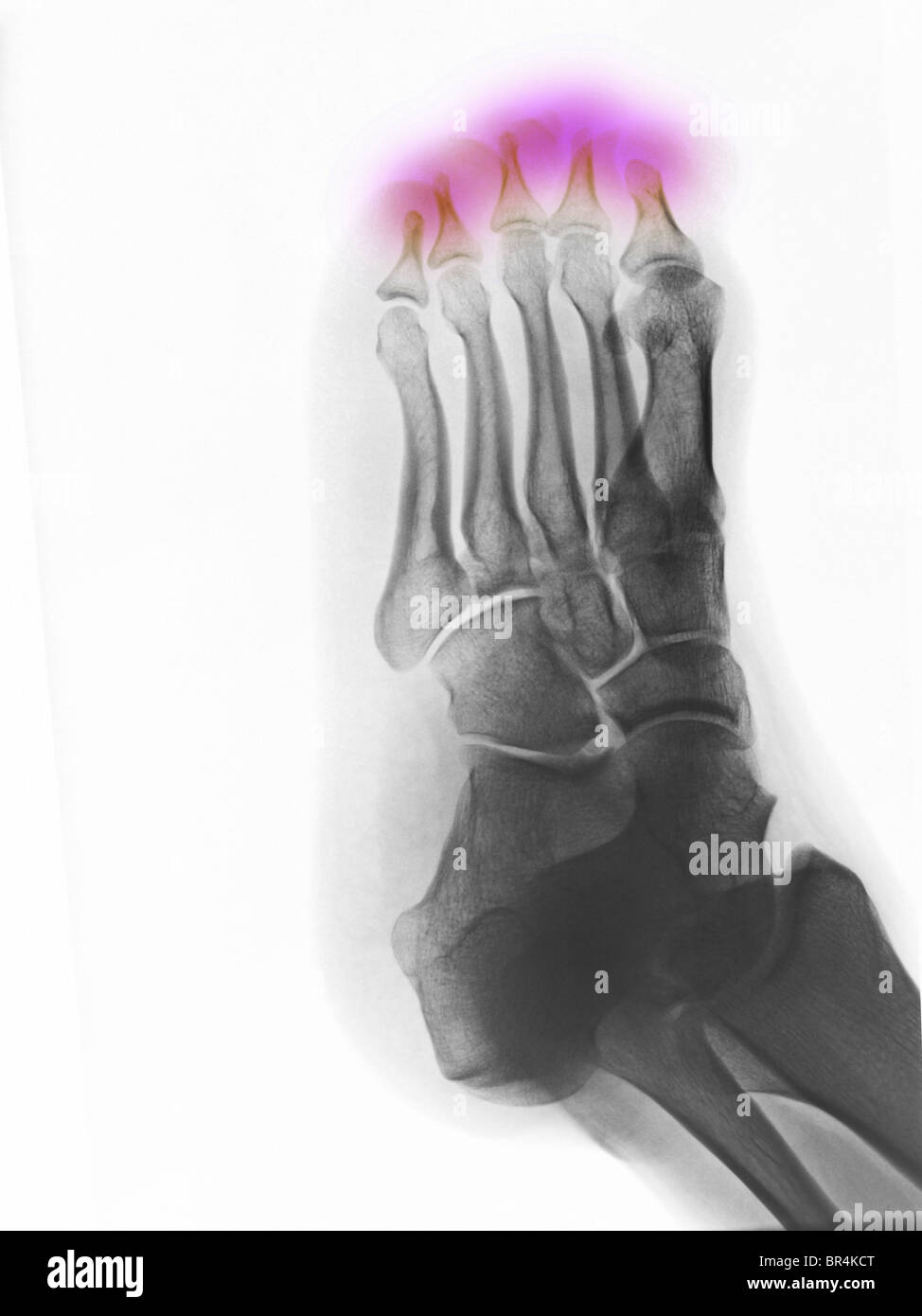 Foot x-ray of a 25 year old man showing congenital absence of the distal bones in the toes - Stock Image