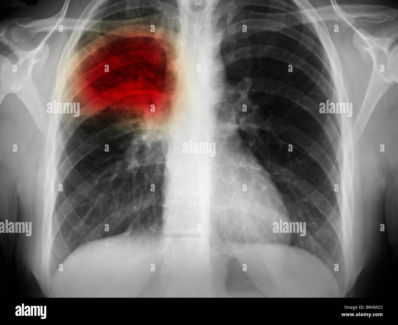 chest x-ray showing pneumonia in the right upper lobe of the lung of a 17 year old woman - Stock Image